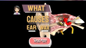 what causes ear wax